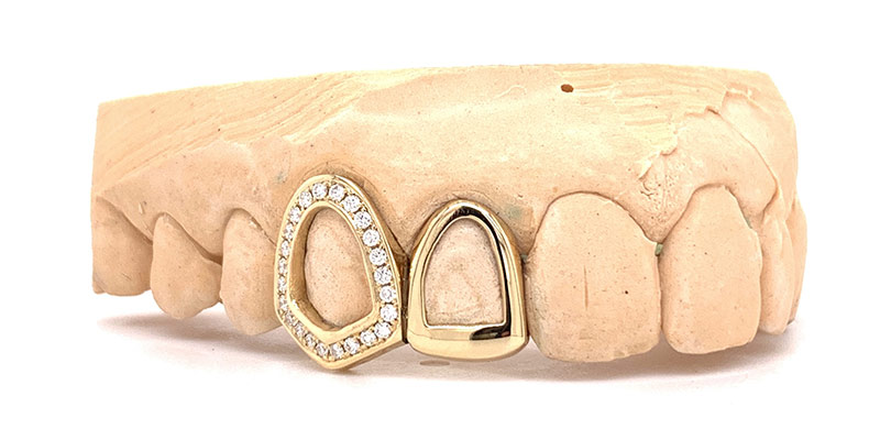 Grillz, Grills, Berlin, Grill Meister, Iced Out,